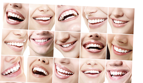Collage of Smiles